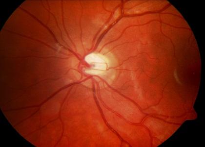 <a href='http://www.tvbuy.vn/bao-ve-suc-khoe/lam-the-nao-de-giam-mo-trong-mau-va-dieu-hoa-cholesterol-154740'>Làm thế nào để giảm mỡ trong máu và điều hòa Cholesterol?</a>