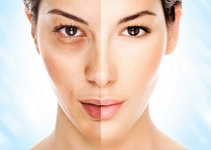 Để lựa chọn được những sản phẩm làm đẹp da tốt cho da, có chất lượng, đặc biệt là sản phẩm trị nám và tàn nhabg thì các bạn nữ cần tìm hiểu thật kĩ.