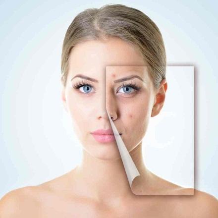 Tuổi 30 – thời điểm xuất hiện những nếp nhăn, mụn và cả sự lão hóa da.