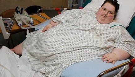 Điều trị béo phì bằng sibutramine