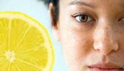 Mẹo trị nám da cực hiệu nghiệm bằng nước chanh