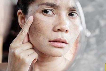 Tăng sắc tố melanin làm cho da bị nám, sậm màu