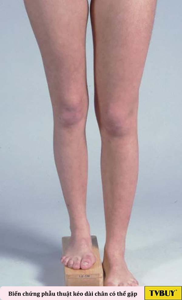 biến chứng có thể gặp khi phẫu thuật kéo dài chân