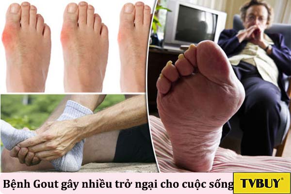 vị trí thường thấy của bệnh gout