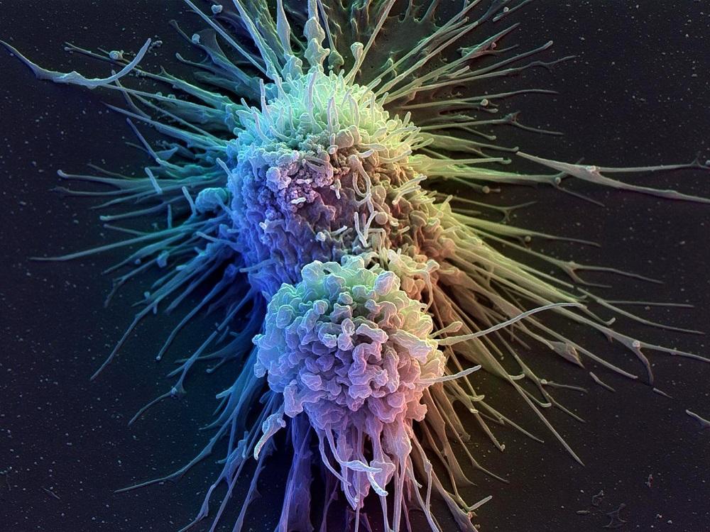 Mối liên hệ giữa trọng lượng cơ thể và bệnh ung thư 03