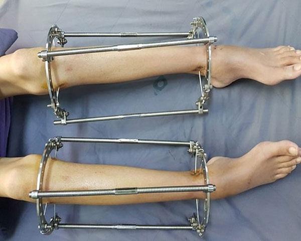 Phẫu thuật kéo chân có thể để lại nhiều biến chứng nguy hiểm