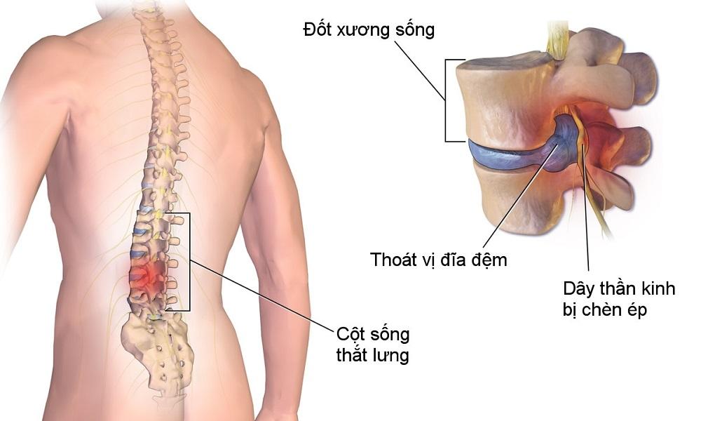 Phát hiện thoát vị đĩa đệm từ chứng đau lưng 02