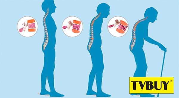 Loãng xương khiến người phụ nữ thiếu hụt xương và có thể làm chiều cao giảm đi tới 5cm lúc về già.