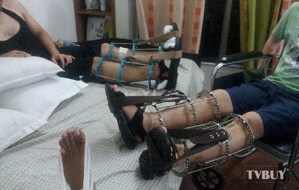 Hiện trạng phẫu thuật kéo dài chân hiện nay