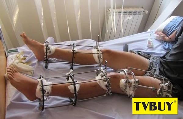 Kéo dài chân là phẫu thuật đầy đau đớn mà không phải ai cũng có thần kinh thép để chịu đựng được