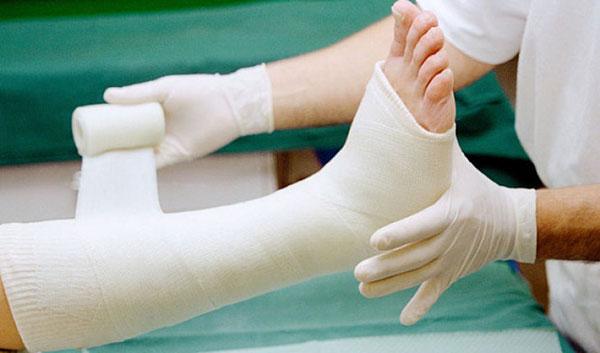 Bố mẹ cần chú ý chăm sóc trẻ đúng cách khi bị gãy xương chân