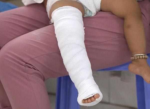 Trẻ bị gãy xương chân có thể ảnh hưởng đến chiều cao sau này hay không?