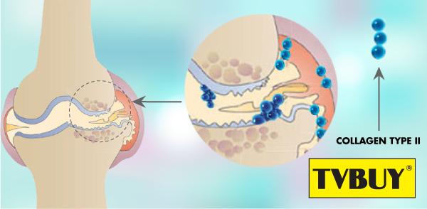 Collagen type II trong sụn khớp