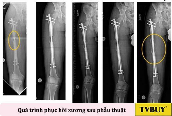 quá trình phục hồi xương sau phẫu thuật