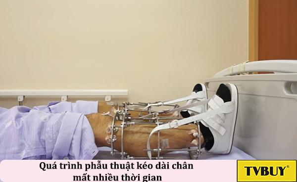 tạc dụng phụ của phẫu thuật kéo dài chân